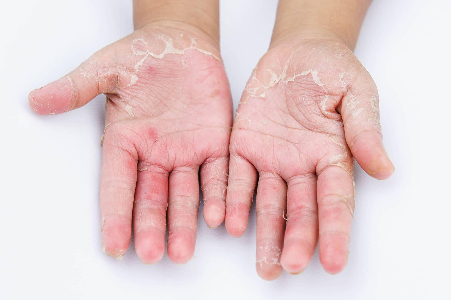 Kako negovati roke