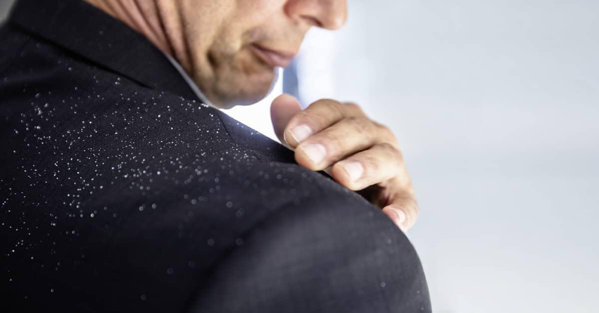 Moški v obleki, ki si z roko z ramen odstranjuje prhljaj