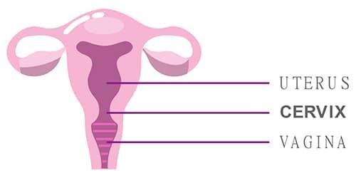 hpv virus posledice a eliminat negii genitali în forum